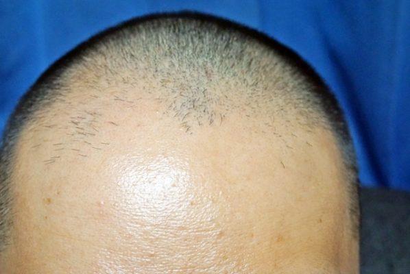 AGA治療で発毛しない人は少ない