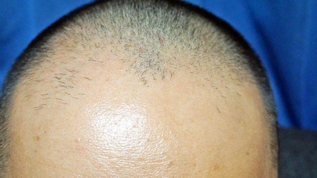 初期脱毛は、ポジティブな反応なので心配いりません